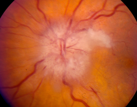 Typical findings in a patient with arteritic ischemic optic neuropathy.  Note the pallid optic disc edema, associated hemorrhages, and adjacent cotton wool spot.  Photograph courtesy of Dr. Nicholas Volpe.