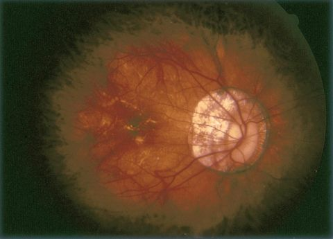 Pathologic myopia with tilted disc and peripapillary atrophy of RPE and choroid.
