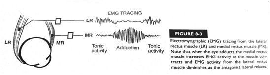 EMG tracing demonstrating the neurogenic theory described above.
