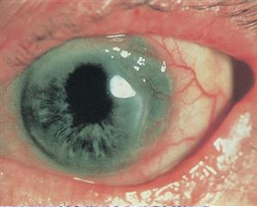 Mooren's ulcer. Crescent-shaped ulceration with an overhanging central edge and a vascularized base are seen in the temporal periphery of the cornea. Ⓒ 2014 American Academy of Ophthalmology.