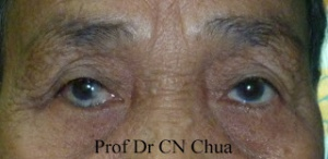 Entropion of the right lower eyelid. The marginal structures are rotated posteriorly. Credit: Dr. CN Chua