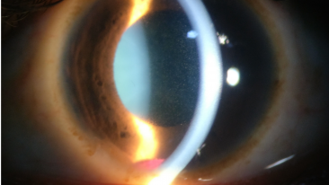 Traumatic uveitis and Hyphema can lead to Synchysis Scintillans