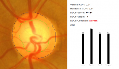 Segmentation of Optic Disc and Cup by Artificial Intelligence