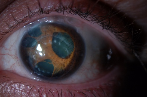 Essential Iris Atrophy!.jpg