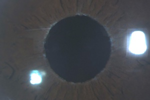 Pseudoexfoliative material at the pupillary border.jpg